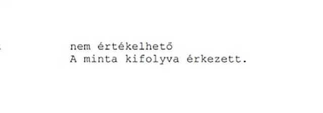 koronavírus - teszt - Polgár